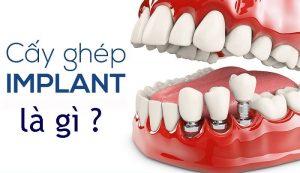 Cấy ghép implant là gì ?