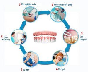 Cấy ghép implant – giải pháp cho người mất răng lâu răng