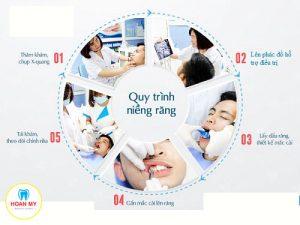 Quy trình niềng răng chỉnh nha tại nha khoa Quốc Tế Hoàn Mỹ