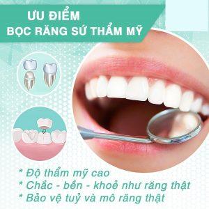 Công nghệ bọc răng sứ không mài bảo vệ răng thật tối đa