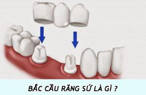 bắc cầu răng sứ là gì ?