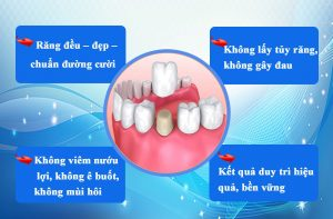 Tại sao nên chọn bọc răng sứ không mài tại Nha Khoa Quốc Tế Hoàn Mỹ ?