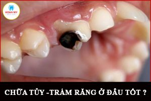 chữa sâu răng ở đâu tốt nhất tại Cà Mau