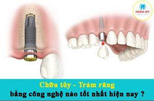 Chữa tủy - Trám răng bằng công nghệ nào tốt nhất hiện nay?
