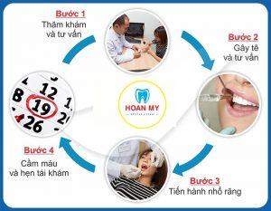 Quy trình nhổ răng tại nha khoa quốc tế Hoàn Mỹ