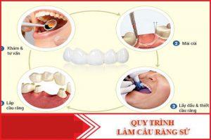 Quy trình làm bắc cầu răng sứ diễn ra như thế nào?