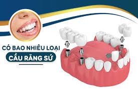Bạn nên chọn loại bắc cầu răng sứ nào?