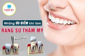 Ưu điểm của răng sứ thẩm mỹ