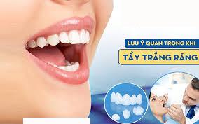 Những lưu ý khi tẩy trắng răng