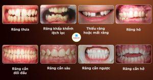 Ai cần niềng răng- chỉnh nha ?