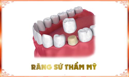 boc răng sứ DV