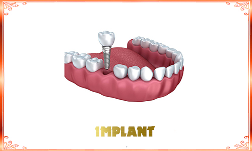 implant DV