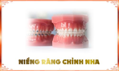 niềng răng DV