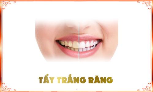 Tẩy trắng răng DV
