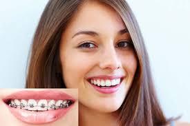 Niềng răng có ảnh hưởng đến tướng số hay không