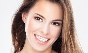 Niềng răng có ảnh hưởng đến tướng số
