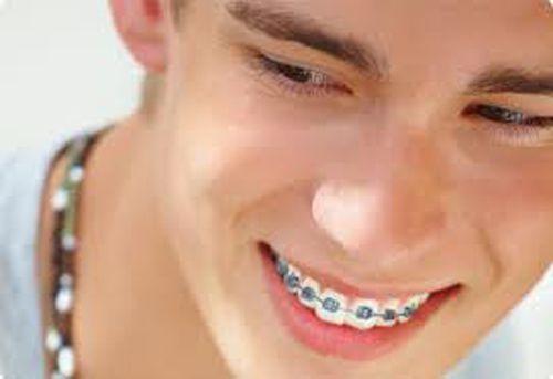 Niềng răng 1 hàm giá thế nào?